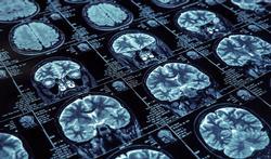 Alzheimer : les pertes de mémoire, vraiment le meilleur indice ?