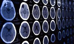 Maladie d'Alzheimer : la transmission invisible