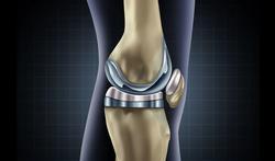 Arthrose du genou : la prothèse souvent posée trop tard