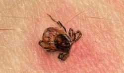 Morsure de tique : quel risque de maladie de Lyme ?