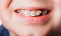 71256357_M-kind-beugel-tand-orthodontie--.png