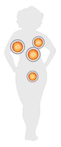 Abbvie-verneuil-beeld-anatom.png
