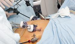 Hogere levensverwachting na bariatrische chirurgie