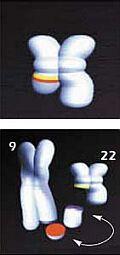 Philadelphia-chromosome.jpg