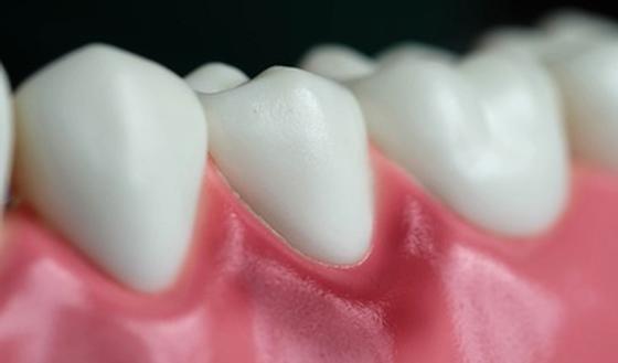 Quelles solutions contre la gingivite ? | PassionSanté.be