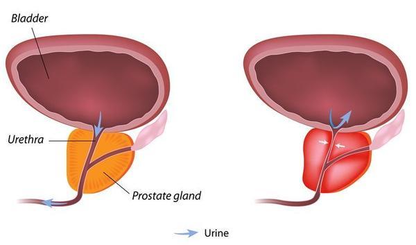 Prostatit ad