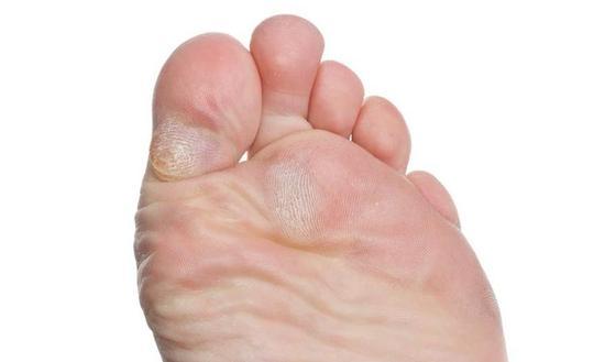 cor pied infecte