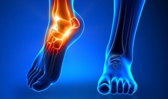 Entorse de la cheville : symptômes et traitements ...