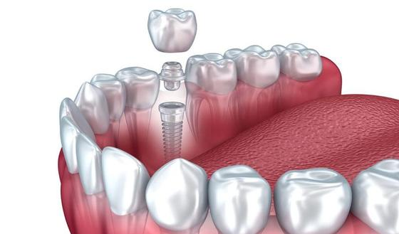 pivot ou implant