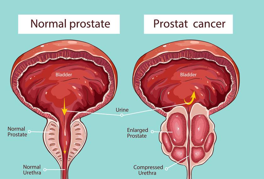 f-123-anatom-prostaatkanker-12-18.png