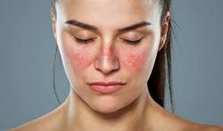 Vidéo - Lupus : causes, symptômes, traitements