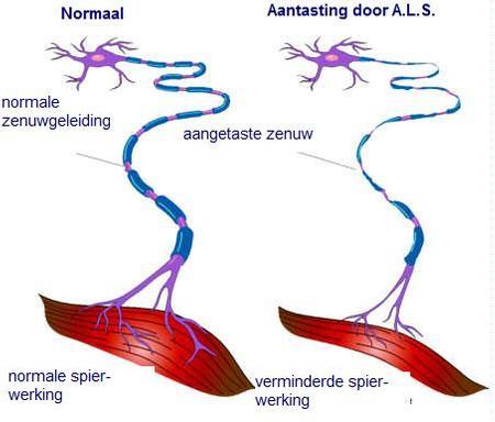 mechan-ALS-neuron-450.jpg