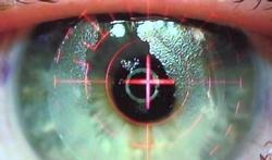 oog-op-lasik-1710_400_10.jpg