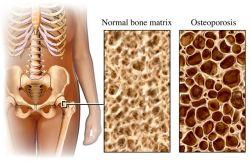 osteoporose-heupkop-250.jpg