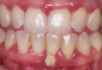 traitement contre la parodontite