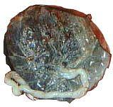 De placenta: beschrijving-ontwikkeling-structuur-functies