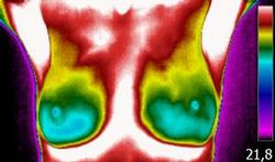 La thermographie : une alternative à la mammographie ?