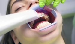 Appareil dentaire : à quel âge chez l'enfant ?