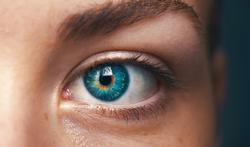 Opération de la myopie : le témoignage de Sofie
