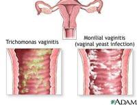 vaginitis-can-tric.jpg