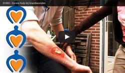 Video: Eerste hulp bij brandwonden