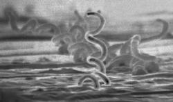 Syphilis : une très forte progression en Europe
